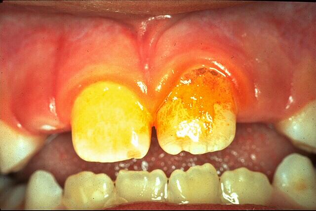 Dental_biofilm_1.jpg